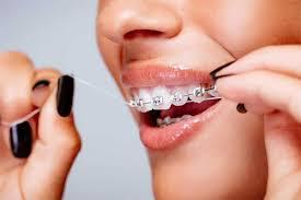 Chăm sóc sau khi niềng răng – những điều bạn PHẢI biết
